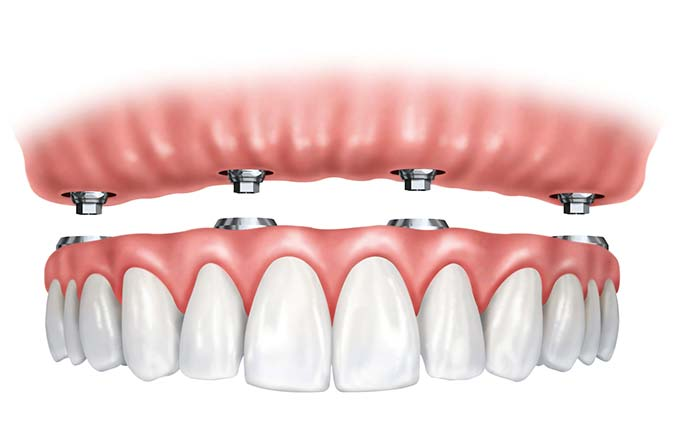 4 dental implants instead of one implant per tooth