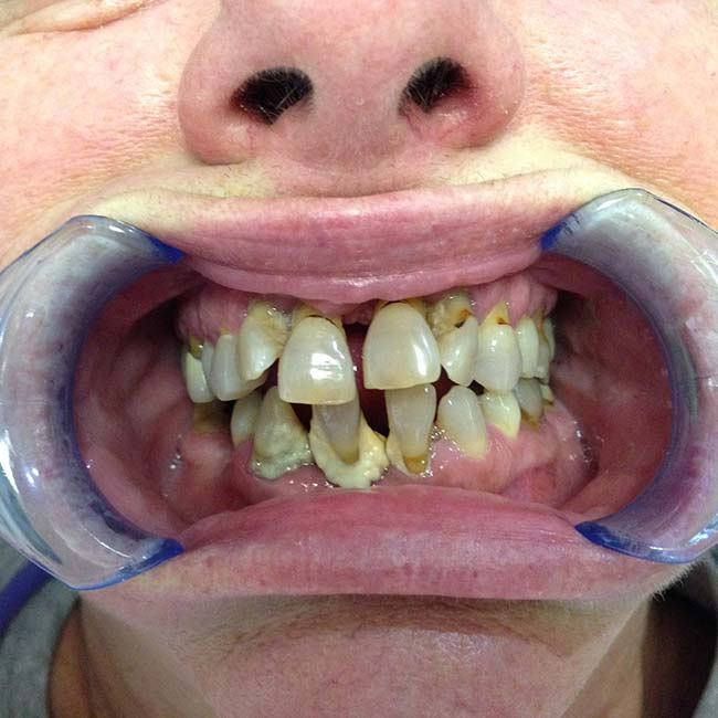 All-in-4 Dental Implant Patient Before